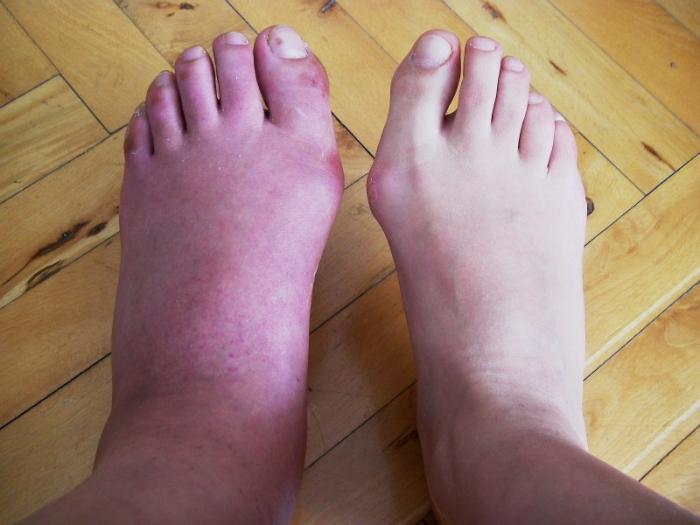 44. gün: alçı çıktı; şiş, mor ve sancıyan bir ayağım var