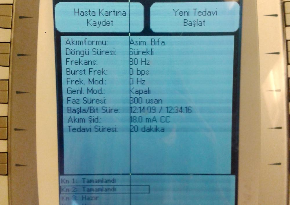 Ultrason cihazının ekranı